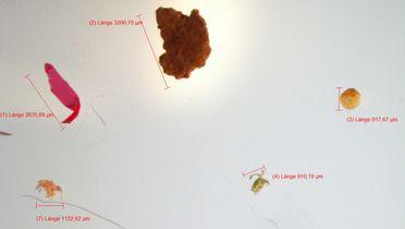 Mikroplastik unter dem Mikroskop.